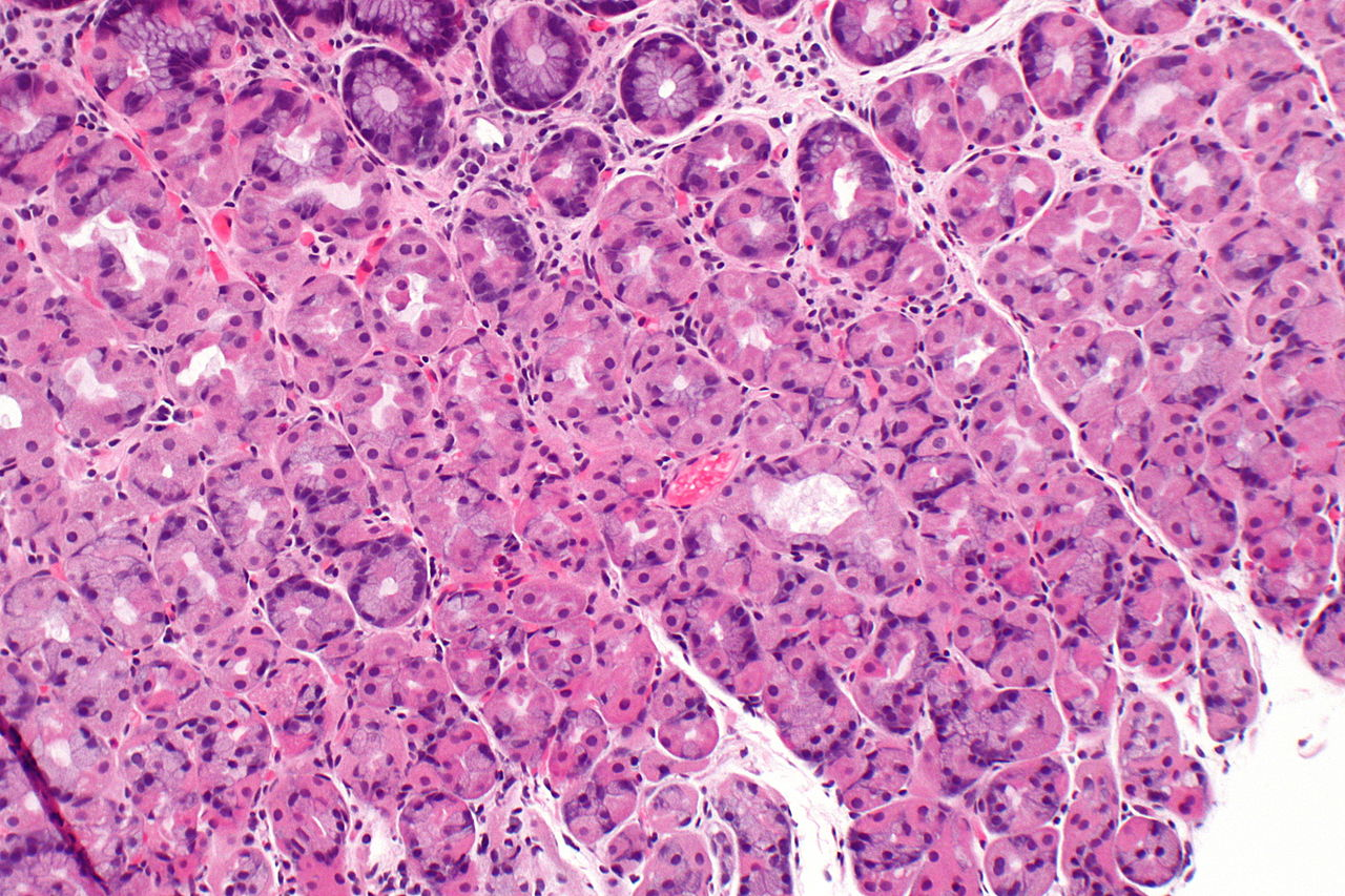 1280px-stomach_with_prominent_parietal_cells_-_intermed_mag