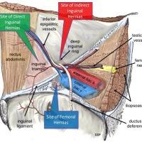 Direct Hernia vs Indirect Hernia